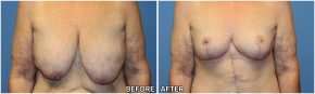 breast-reduction24